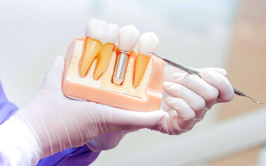 Dental Implant Model.