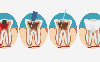 A Comprehensive Guide to Understanding Root Canals