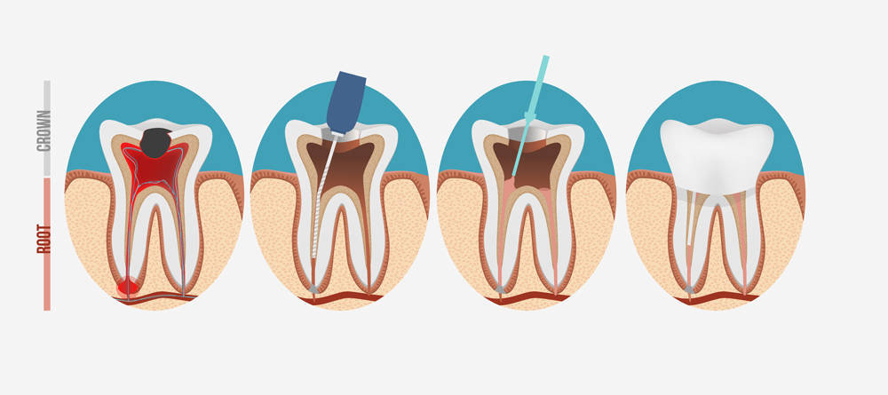 Root Canal Infographic
