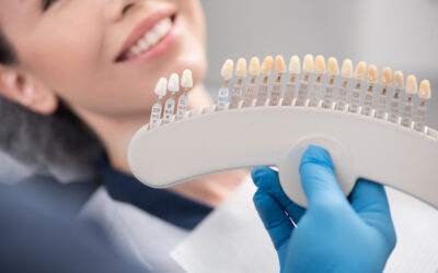 Everything You Wanted to Know About Dental Veneers