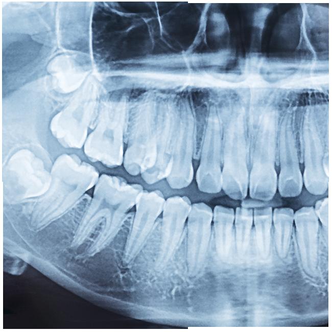 Ellerslie 66 Dental wisdom teeth xray