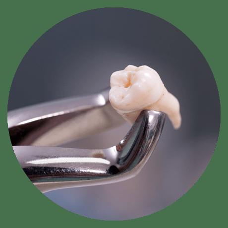 Ellerslie dental implant services