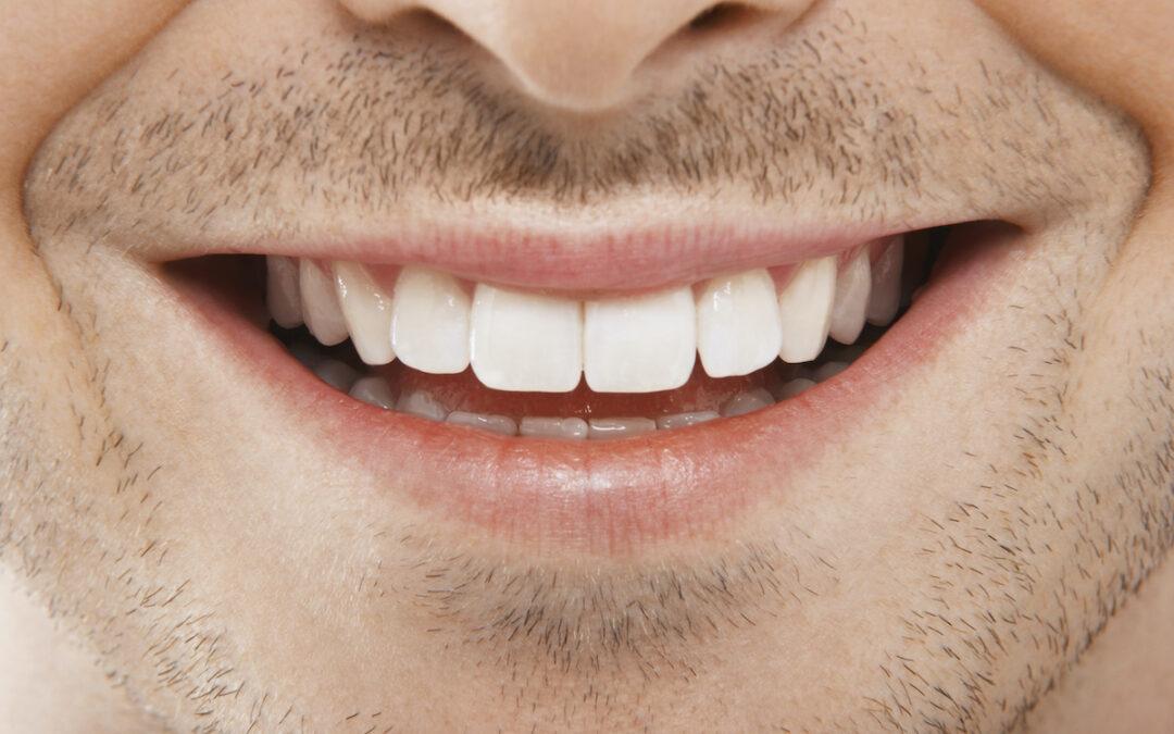 How to Whiten Teeth.